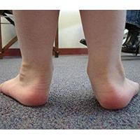 Все дети рождаются с наличием физиологического плоскостопия, которое исчезает по мере роста и развития малыша. Но бывают случаи, что у ребенка к 4 — 5 годам развивается плосковальгусная деформация стопы. Причины появления плоскостопия довольно разнообразны.