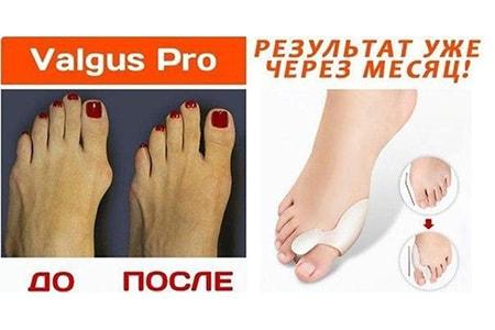 Ортопедический фиксатор Valgus Pro